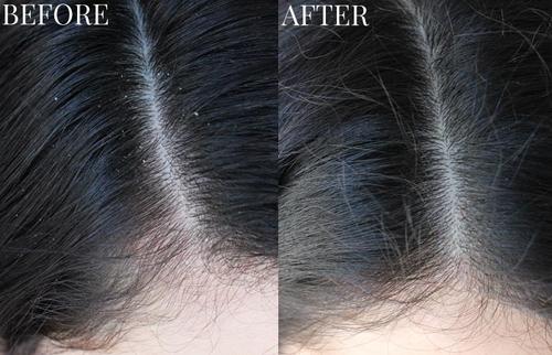 Vitamins for thinning Hair Regrow Hair Naturally